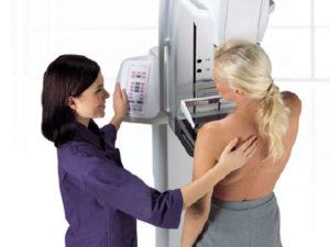 Sanita': per mammografia attese record, quasi 4 mesi in media