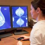 Lamezia: Associazione Alice ottobre mese prevenzione tumore seno