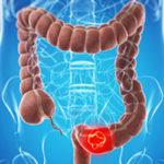 Tumori: screening colon-retto, grandi differenze tra Nord e Sud