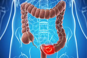 Tumori: screening colon-retto, grandi differenze tra Nord e Sud