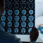 Sclerosi multipla e neuropsichiatria infantile, proposte di Peda'