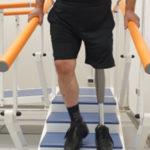 Inail: centro protesi Lamezia realizza  prima protesi ginocchio elettronico